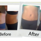 your-hcg-before-after_davelyn
